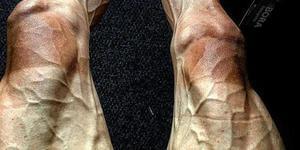 运动员双腿血管异常凸起惊悚骇人