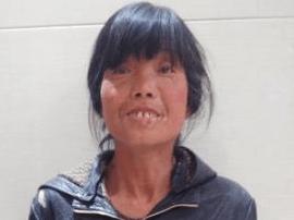 大同救助55岁疑似智力障碍半哑无名女 急寻亲属