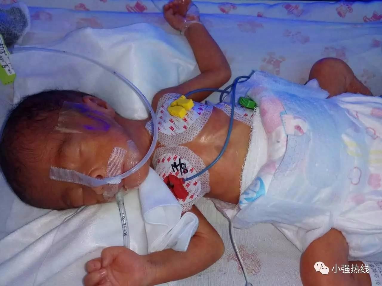 """孩子早产仅800克 佛山妈妈为救女""""牺牲""""自己"""