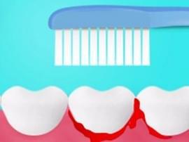 牙龈红肿出血是怎么造成的?牙龈炎还有什么其他症状呢