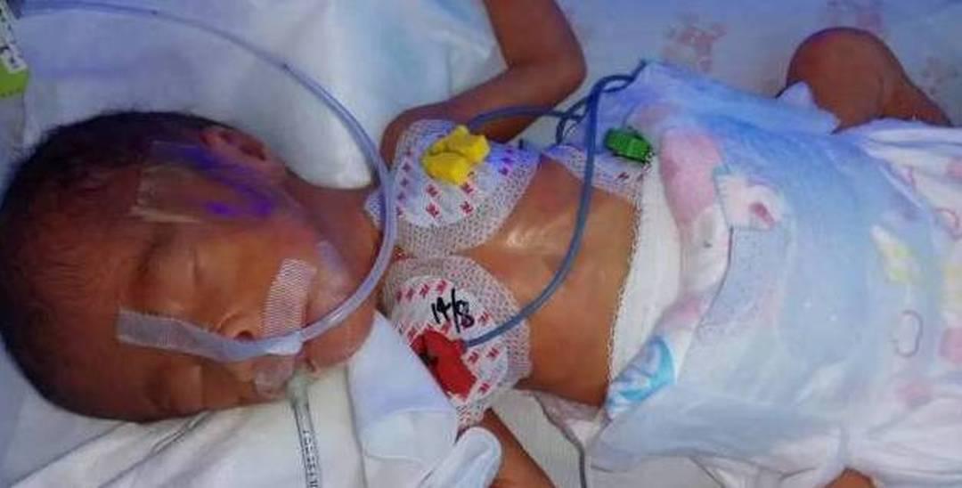 """女婴早产仅800克 妈妈""""牺牲""""自己救女"""