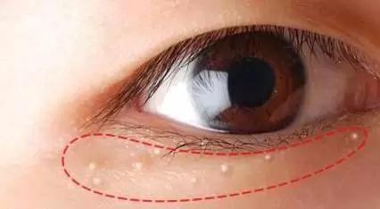 脸上的脂肪粒,是因为护肤品堵塞毛孔?