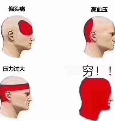 不同种类头疼的感受区域