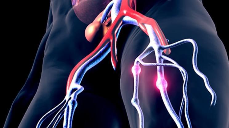 高个人群注意!研究称:越矮的的人 血栓风险越低