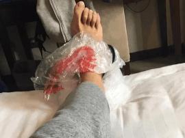 苏伟晒为受伤脚踝做冰敷的照片