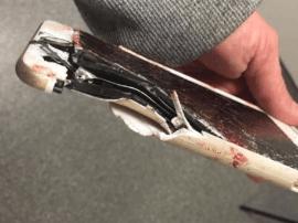 iPhone挡住曼彻斯特恐袭爆炸碎片救下用户性命