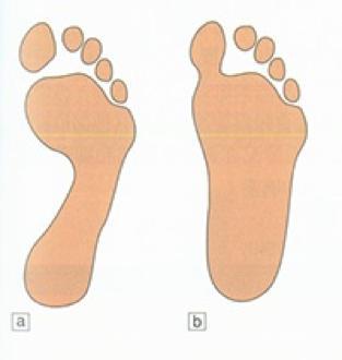 三个足弓会形成一个稳定的三角结构,给予我们的脚弹性和缓冲功能.