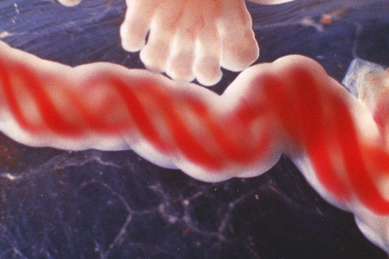 返老还童之道?人类婴儿血让老老鼠大脑再度年轻