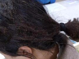 燃气爆炸 郴州一女子仅被烧到头发,因为这一举动