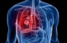 中外肺癌治疗技术各自特点