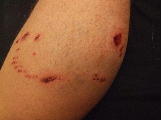 狗咬伤口。只要肉眼可见有出血,就是最高级别的暴露,伤口处理、注射疫苗、注射免疫球蛋白必须来一整套/wikimedia commons