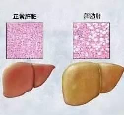 女子减肥半年减掉40斤 顿顿吃蔬菜却得了脂肪肝