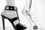 选鞋有讲究 长期穿高跟鞋易引发脚部病