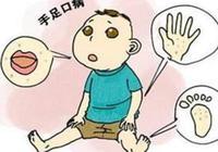 7名学生确诊手足口病 北京一小学停课全校消毒
