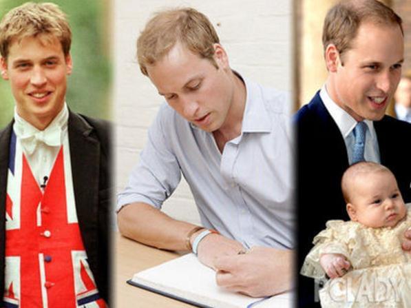 看威廉王子如何吐槽自家遗传的秃顶(双语)