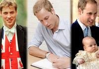 双语:看威廉王子如何吐槽自家遗传的秃顶