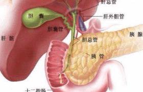 胆囊结石 大的一定更疼吗?