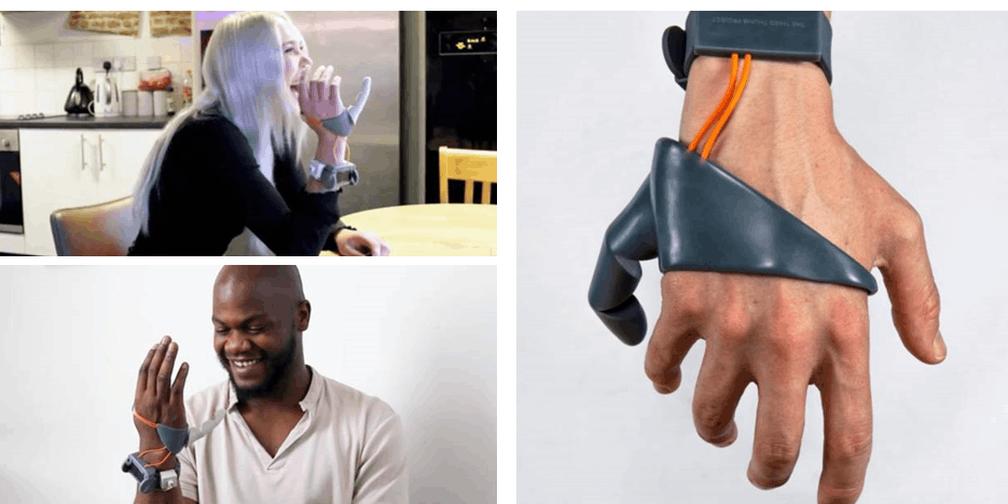 想要六根手指吗?3D打印帮你打印第六根手指