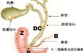 多大的胆囊结石必须要手术治疗?
