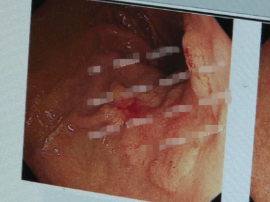 泰州一大爷通过胃镜取鱼刺 检查出早期胃癌