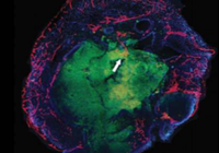 重大突破!移植到鼠脑的微型人脑长出毛细血管