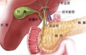 关于胆囊结石 大的一定更疼吗?