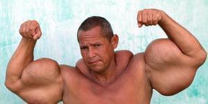 肌肉男注射混合物 手臂畸形粗壮