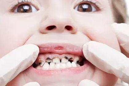 """健康公开课:""""fu不fu!""""牙膏到底含氟到底好不好"""