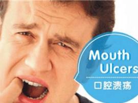 口腔溃疡伤不起 4个小日常帮你击退疼痛