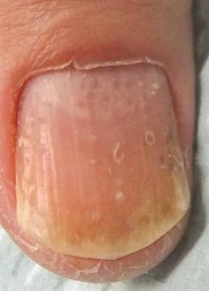 What?你的健康状况真的跟手指上的月牙有关吗