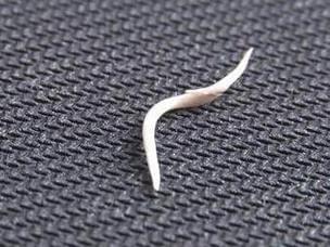 女子遭鱼刺卡喉 硬吞饭团致主动脉被戳穿