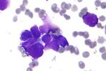 晚期非小细胞肺癌治疗有新武器