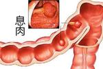 直肠息肉是怎么回事?该如何进行治疗?