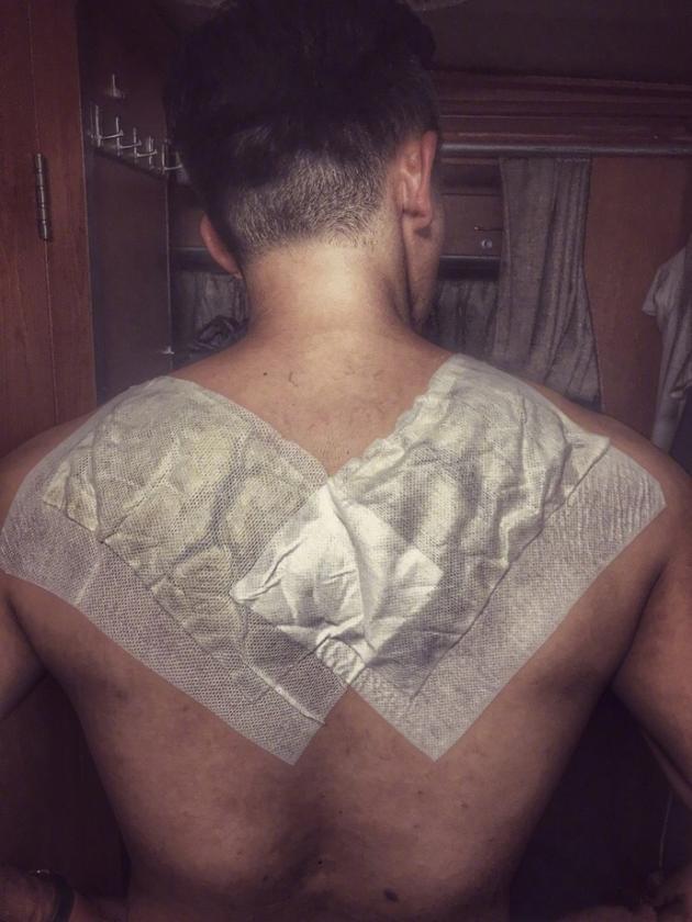 郑恺背部受伤贴膏药:把我的天使之翼割掉了