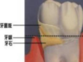 牙齿缝里抠出的黄色物质到底是什么?