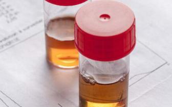 肾病医生:消除尿蛋白的好办法是什么?