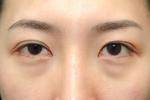 为什么会出现眼袋?怎样有效去眼袋?
