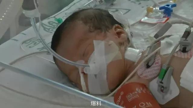 揭阳寺庙初生女婴被抛弃 医生:肠子断了