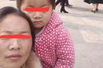 3岁女童患眼癌去世 家属被指拿捐款治儿子