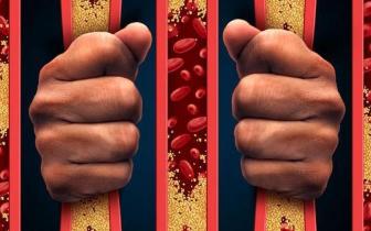 这2类食物要少吃 不然血管会越来越堵!