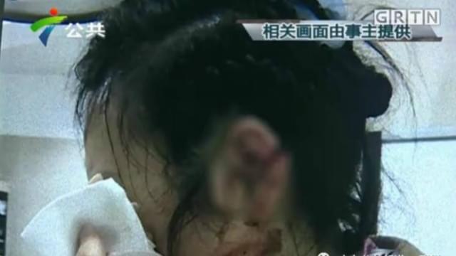 女子在深圳酒店洗澡 穿拖鞋摔倒左耳致残