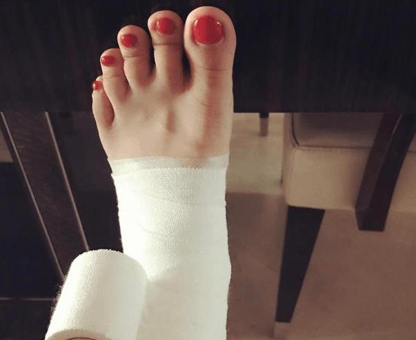 王珞丹脚伤照被趾甲抢镜 网友:脚趾好像在咧嘴笑