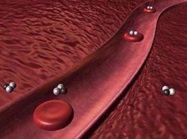 血脂过高的原因:患者在饮食方面需要做好相关的控制