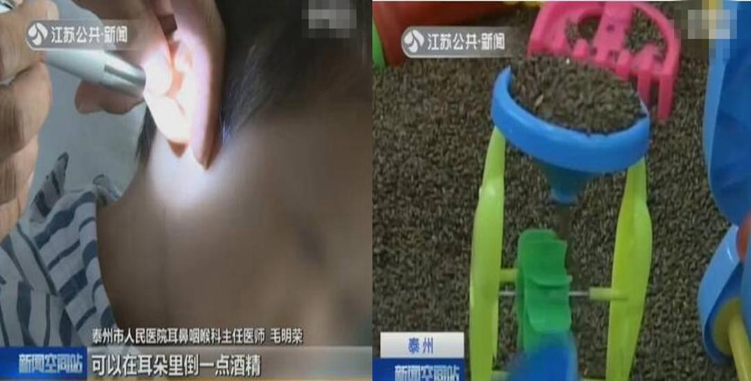 3龄童耳内藏异物 医生手术取出7颗决明子