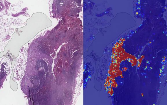 谷歌AI诊病新进展 转移性乳腺癌检测准确率达99%