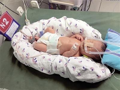 身高88厘米女孩剖腹产子 男娃重4斤体长41厘米