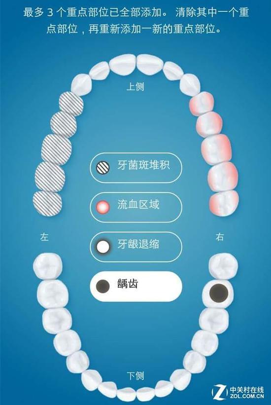 标记牙齿疾病隐患的区域 在APP上,可标记出具有不同牙齿疾病的区域,当刷牙结束后,APP端会提醒使用者及时定制提醒补刷方案,这样不仅可以帮助用户了解自己的牙齿问题,还能为不同情况的牙齿提供专属的保护,非常有针对性。 智能摩擦感应:改善刷牙方式 牙龈如果不好,手再巧的医生也修复不了那口牙,所以保护牙龈的健康至关重要。飞利浦Sonicare钻石亮白智能系列声波震动牙刷,具有智能摩擦感应,能追踪用户是否使用了左右横刷的错误刷牙方式,时刻提醒用户养成正确的刷牙方式,减少摩擦,保护牙龈不受磨损。
