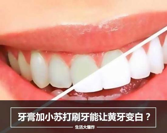 生活大爆炸:牙膏加小苏打刷牙能让黄牙变白?