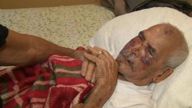 91岁老人在美国被砖头砸脑袋还遭辱骂:滚回你国家