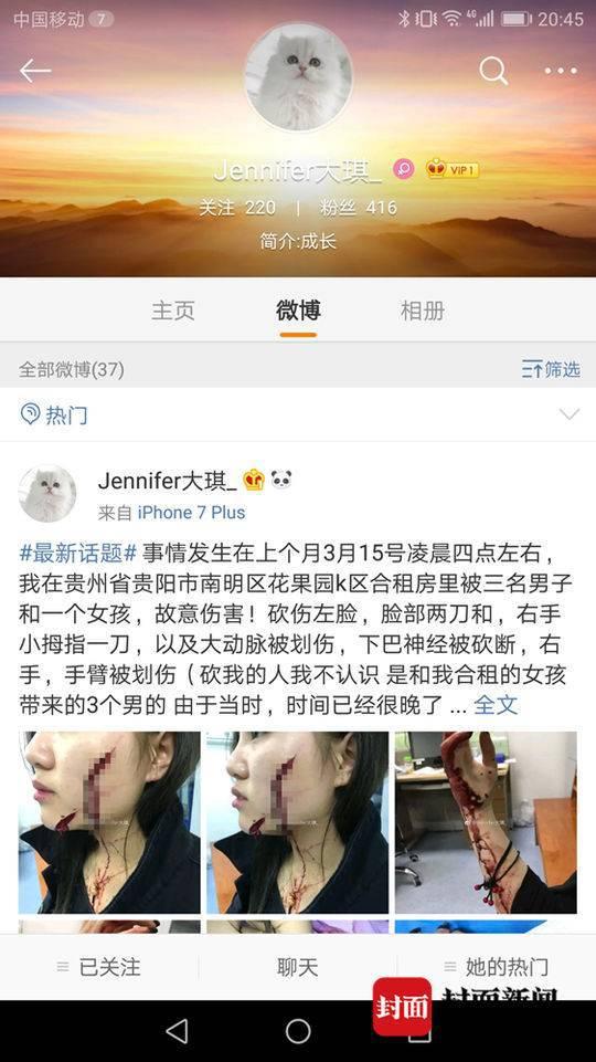 18岁女孩称被合租女生带回男生砍毁容 脸缝200多针